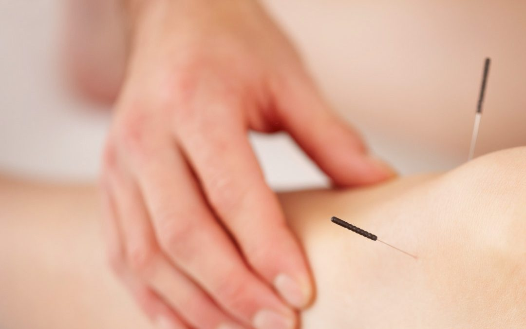 Promoting Induction Through Acupuncture